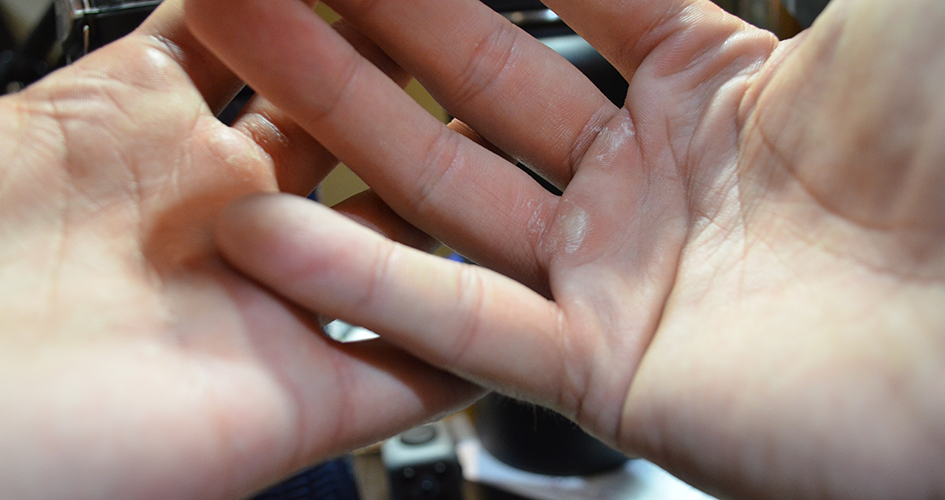 Building blisters: six weeks of personal training